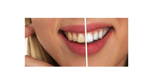 Teeth Whitening Pen Affordable Home Use Professional Results Pro